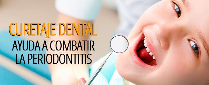 Curetaje dental: descubre qué es y cómo ayuda a combatir la periodontitis