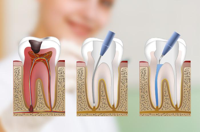 endodoncia en tarragona