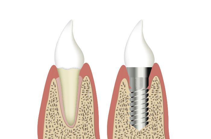 implantologia-oral-clinica-dental-tarragona-tuces