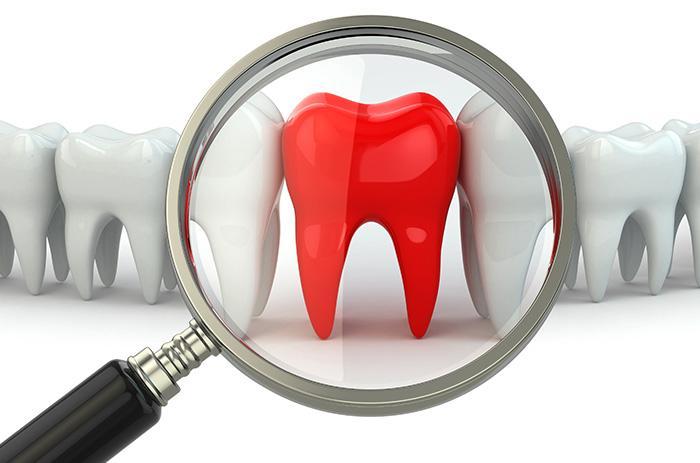 perioncia-clinica-dental-tarragona-tuces_0