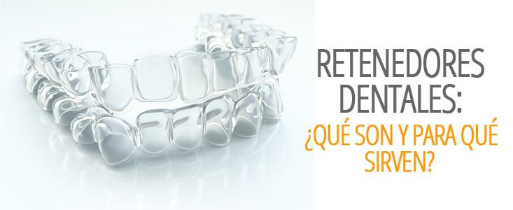 Retenedores dentales: ¿Qué son y para qué sirven?