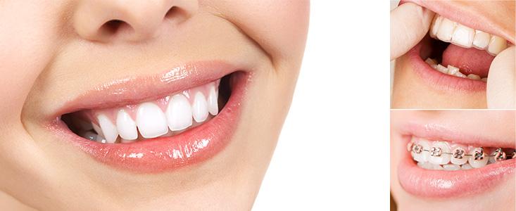 Tipos de ortodoncia, principales características