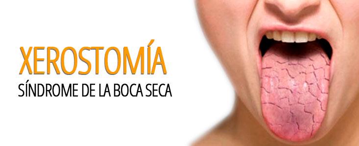 Qué es la xerostomía o síndrome de la boca seca